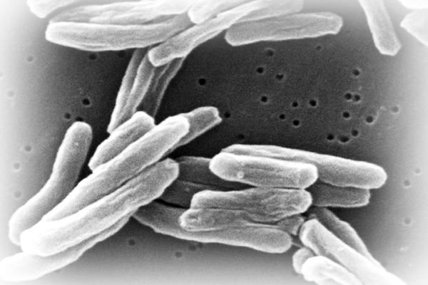 Tuberculinum, foto wikipedia